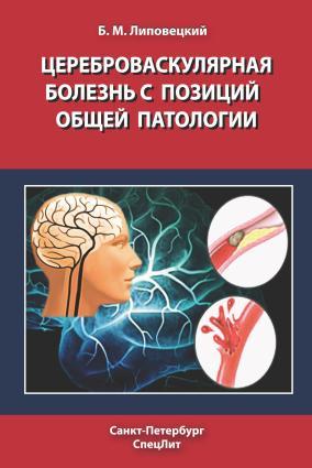 Цереброваскулярная болезнь с позиций общей патологии photo №1