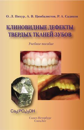 Клиновидные дефекты твердых тканей зубов photo №1