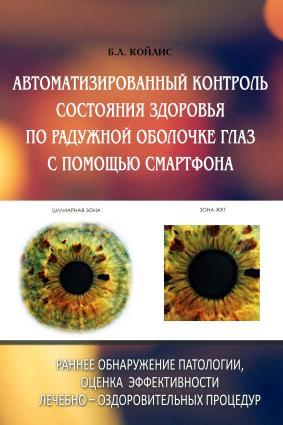 Автоматизированный контроль состояния здоровья по радужной оболочке глаз с помощью смартфона Foto №1