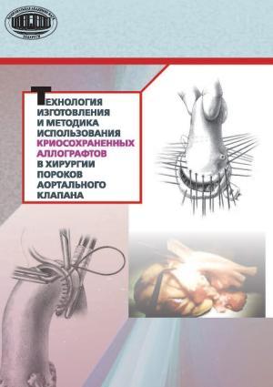 Технология изготовления и методика использования криосохраненных аллографтов в хирургии пороков аортального клапана Foto №1