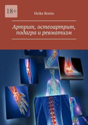 Артрит, остеоартрит, подагра иревматизм Foto №1
