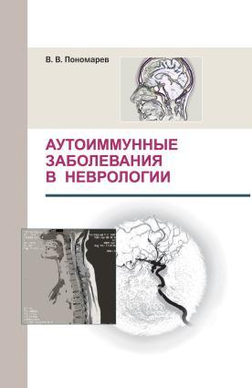 Аутоиммунные заболевания в неврологии photo №1
