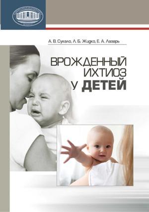 Врожденный ихтиоз у детей photo №1