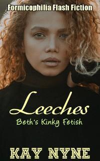 Leeches photo №1